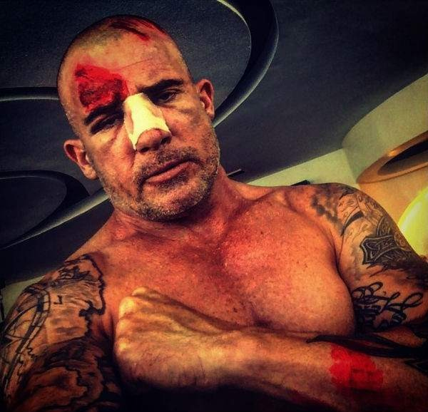 Dominic Purcell, accidente rodaje